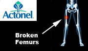 Georgia Actonel Femur Fracture Lawyer